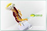 ENOVO颐诺医学人体颈椎模型臂丛神经肌肉模型人体骨骼标本模型