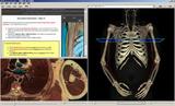 虚拟解剖教学软件