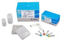 人自然杀伤细胞(NK)ELISA检测试剂盒