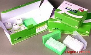 人可溶性蛋白185Elisa试剂盒,sp185/HER-2试剂盒