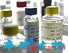 β-N-乙酰氨基葡萄糖β-N-乙酰氨基葡萄糖苷酶测试盒/NAG测试盒苷酶测试盒/NAG测试盒