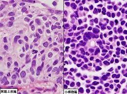 人结肠癌细胞,系,HT-29 细胞