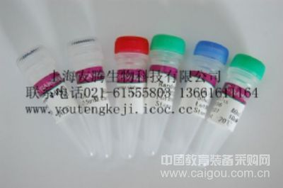 人抗糖蛋白抗体(GP)ELISA Kit
