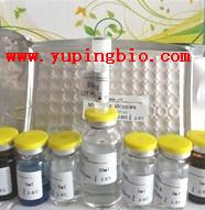 人肠道病毒70 IGM(enterovirus-70 IgM)ELISA试剂盒