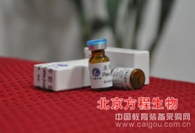 人极低密度脂蛋白(VLDL)检测/(ELISA)kit试剂盒/免费检测