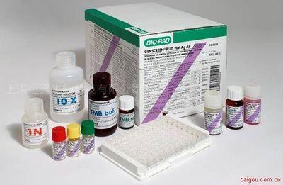 人凝血因子Ⅻ ELISA试剂盒