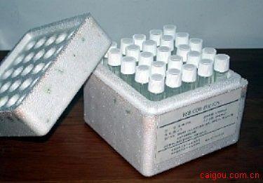 人抑瘤素MElisa试剂盒,OSM试剂盒