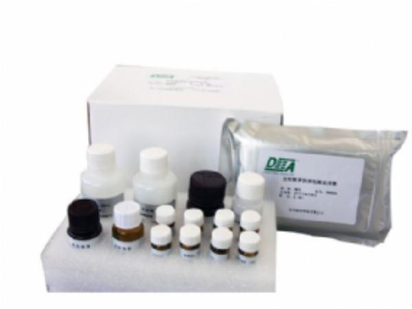 人抗天然脱氧核糖核酸抗体(n-DNA-Ab)ELISA试剂盒  规格