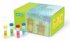 人细胞外基质磷酸糖蛋白(MEPE)ELISA试剂盒