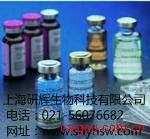 人髓鞘碱性蛋白抗体(MBP)ELISA 试剂盒